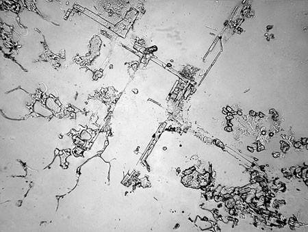 Lagrimas al microscopio 3