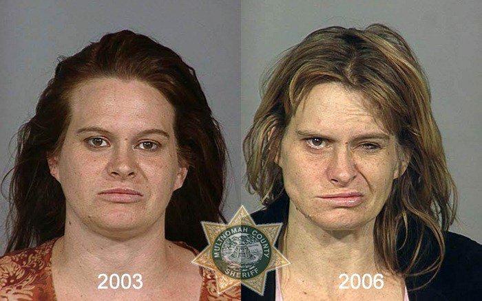 antes y despues drogras11