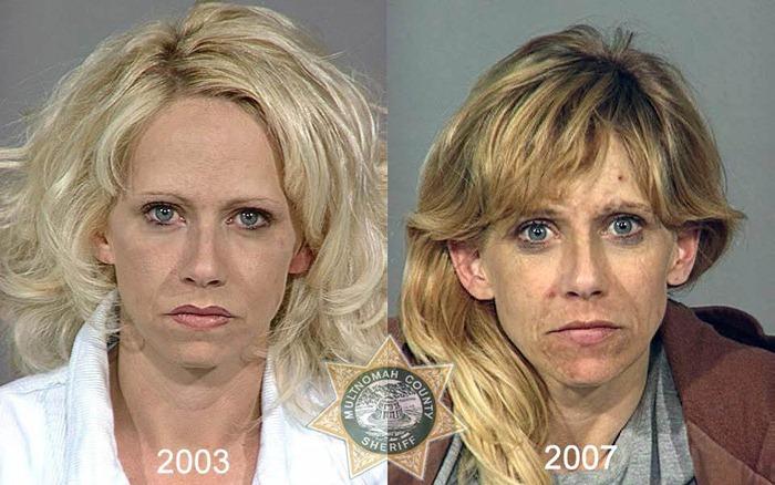 antes y despues drogras13