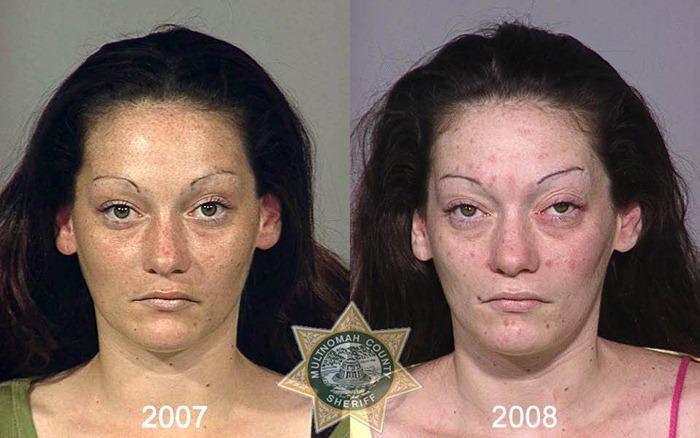 antes y despues drogras14