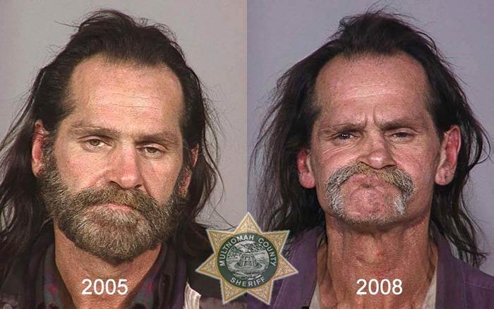 antes y despues drogras4