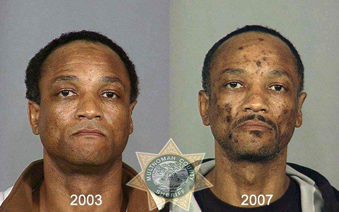 antes y despues drogras5