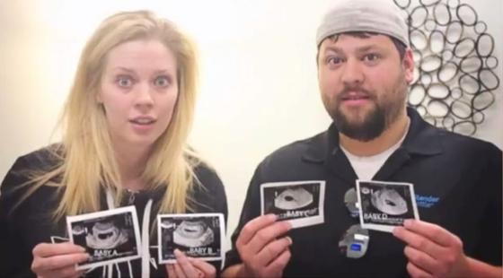embarazada-cuatrillizos