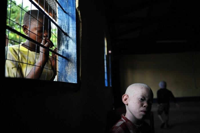 Los niños albinos no son libres en África, viven en prisiones para protegerse de la sociedad.