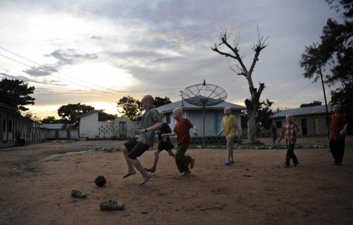 Niños albinos juegan seguros dentro de un colegio interno.