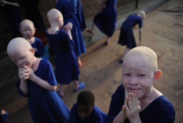 Escolares albinos de régimen interno en Tanzania.