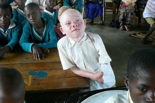 albinos tanzania 12