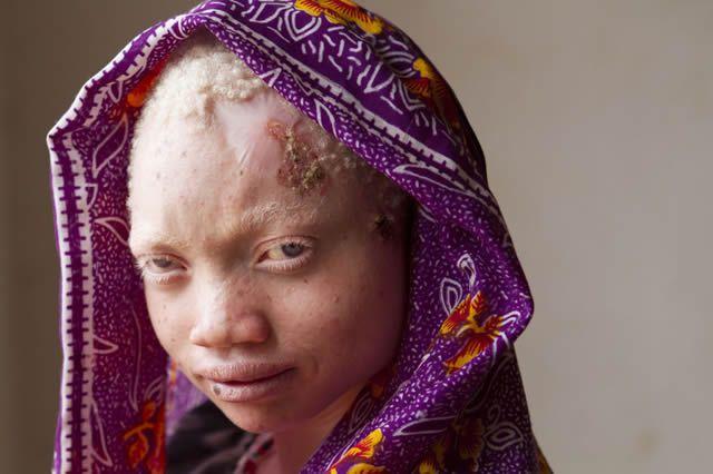 albinos tanzania 15