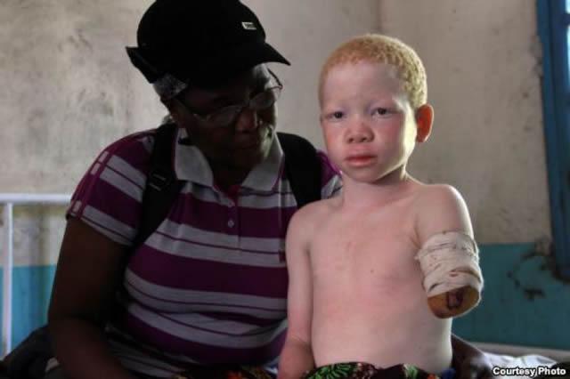 albinos tanzania 16