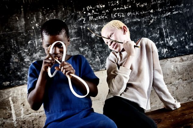 albinos tanzania 2