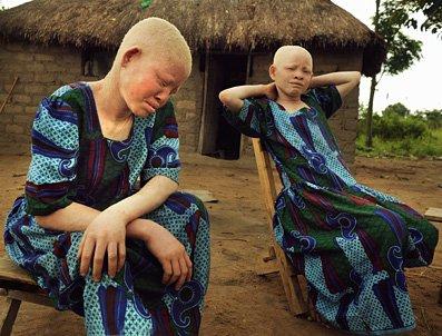 albinos tanzania 4