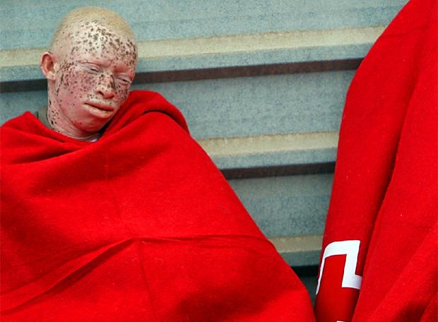 Algunos albinos lo arriesgan todo en busca de un vida segura.