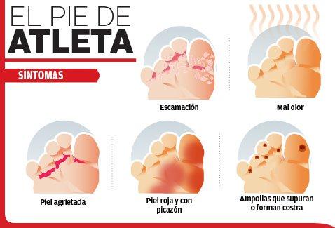 cómo es el pie de atleta