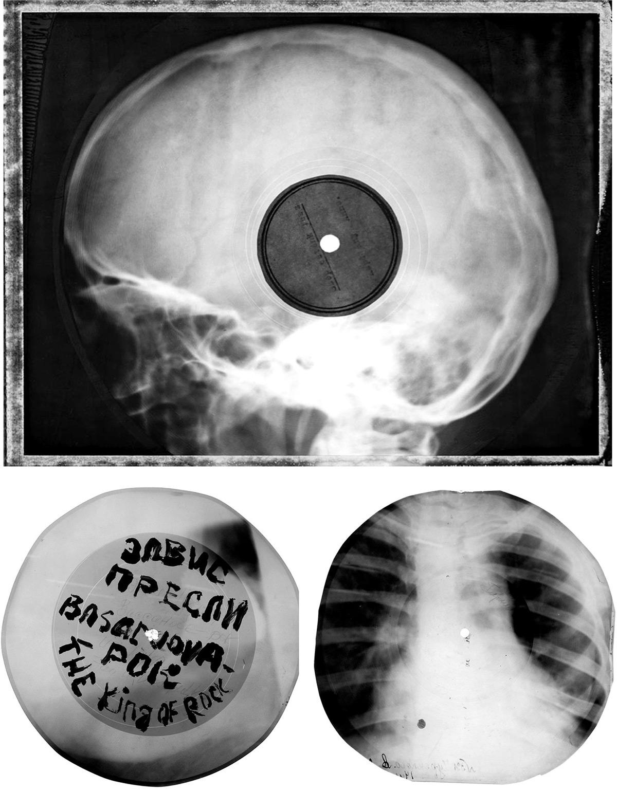 [Imagen: radiografias_vinilos_1-1.jpg]