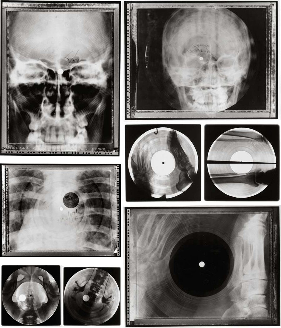 [Imagen: radiografias_vinilos_2-1.jpg]