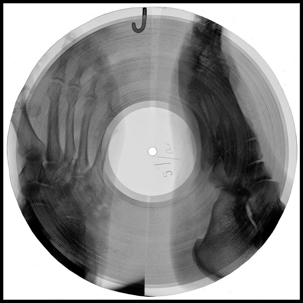[Imagen: radiografias_vinilos_5-1.jpg]
