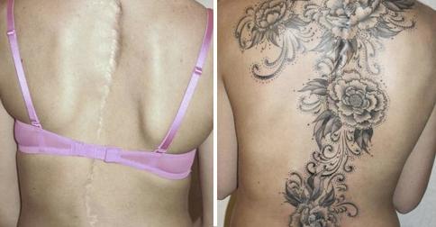 tatuajes-cicatrices