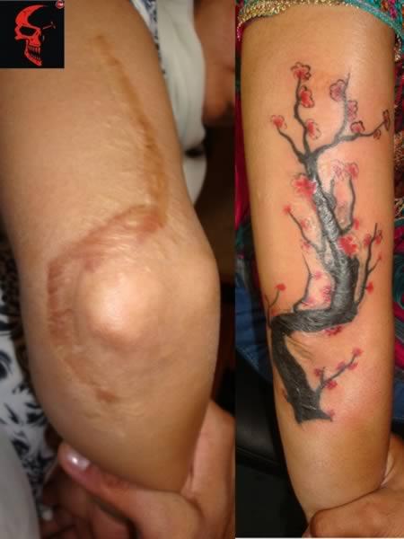 tatuajes en cicatriz 10