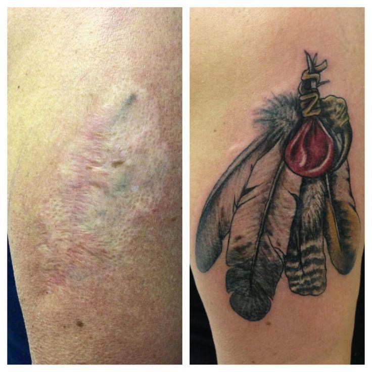 tatuajes en cicatriz 20