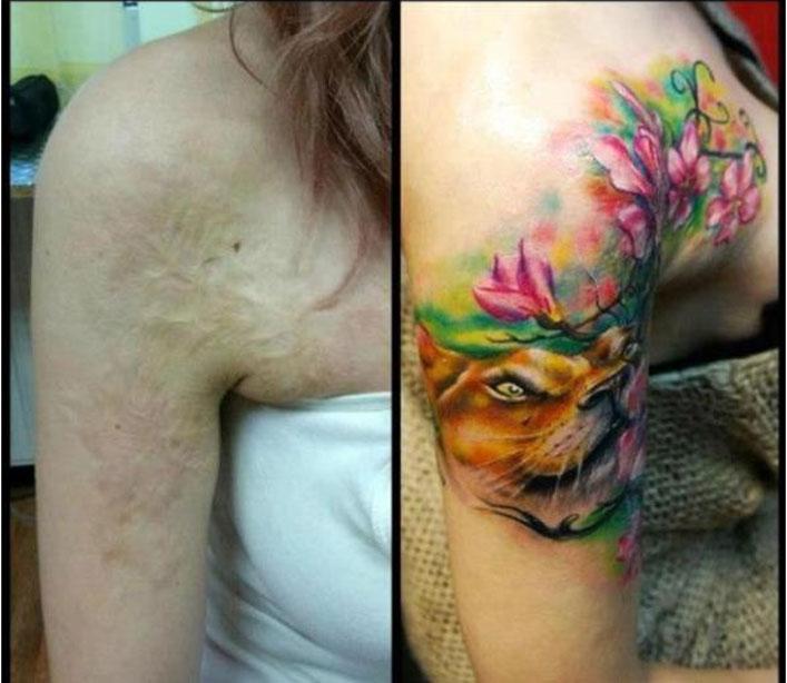 tatuajes en cicatriz 25
