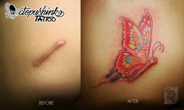 El Antes Y Después De Tatuajes Sobre Cicatrices Nos Muestran Una
