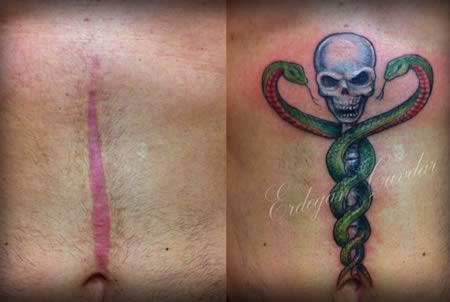 tatuajes en cicatriz 9