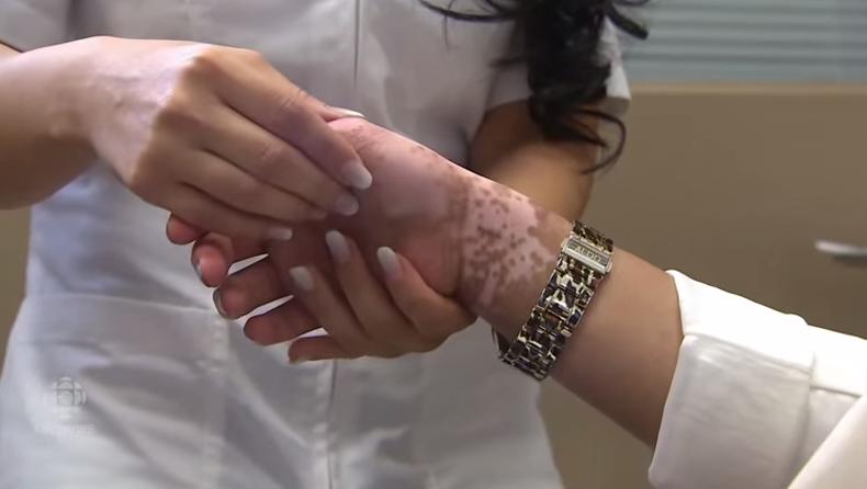 tatuajes-medicos