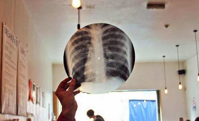 vinilos-con-radiografias