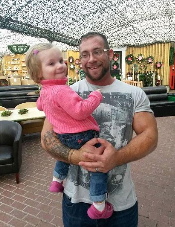 padres se tatuan las manchas de la piel de su hija 1