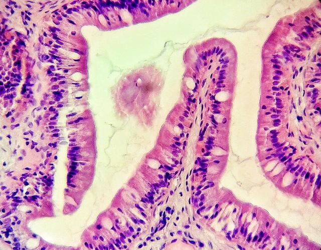 lem-la-celula-que-puede-matar-el-cancer