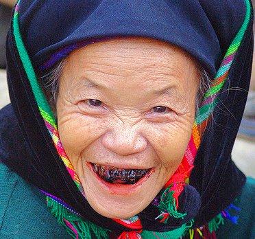 modificacion dientes negros 1