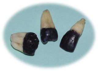 modificacion dientes negros 4