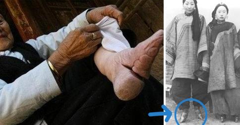 pies-vendados-china