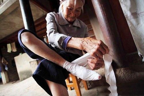 vendado de pies china 15