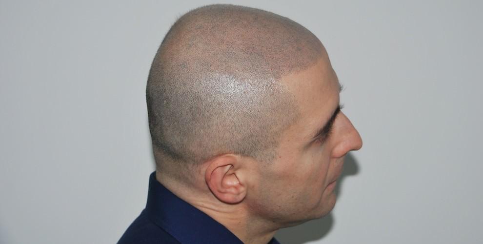 Vinci-Hair-Clinic-990x500