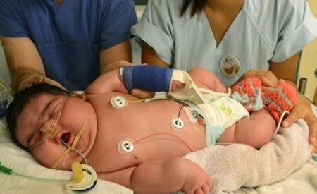 bebes gigantes 1
