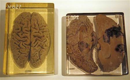cosas sobre el cerebro 3