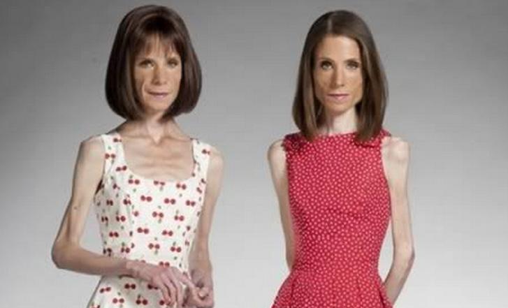 Las 10 Historias Sobre La Anorexia Que Mas Conmocionaron A
