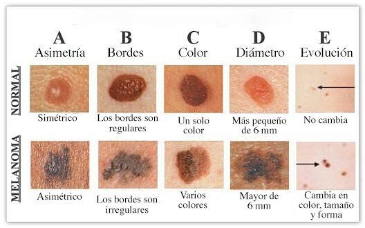 abcde del melanoma