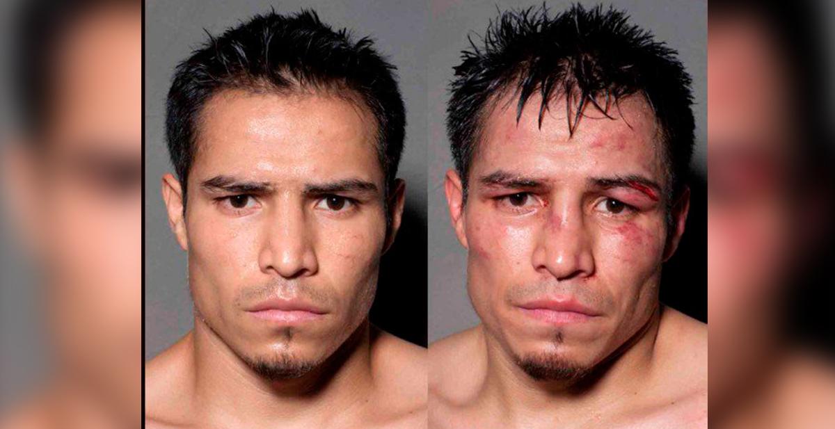 asi se le queda la cara a un boxeador despues de un combate