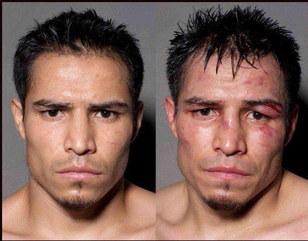 boxeadores antes y despues de un combate 1
