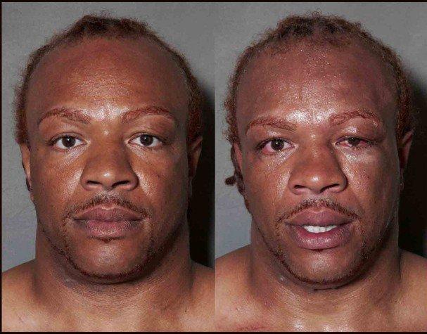 boxeadores antes y después de un combate 10