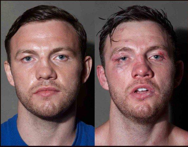 boxeadores antes y despues de un combate 2