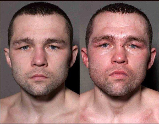 boxeadores antes y despues de un combate 3