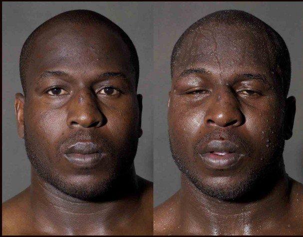 boxeadores antes y despues de un combate 4