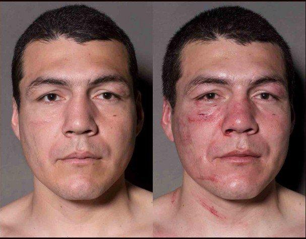 boxeadores antes y despues de un combate 5