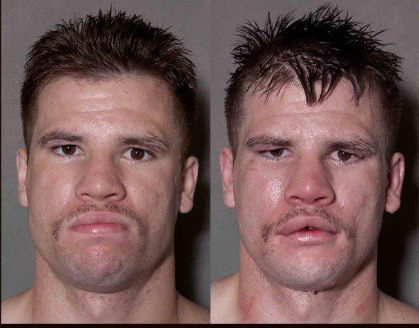 boxeadores antes y despues de un combate 6