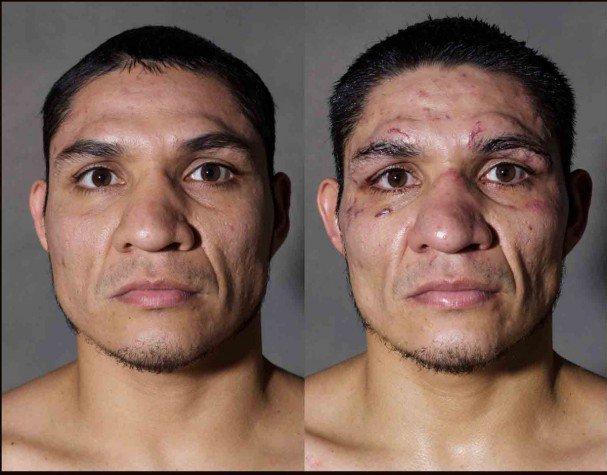 boxeadores antes y despues de un combate 8