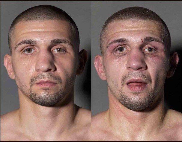 boxeadores antes y despues de un combate 9