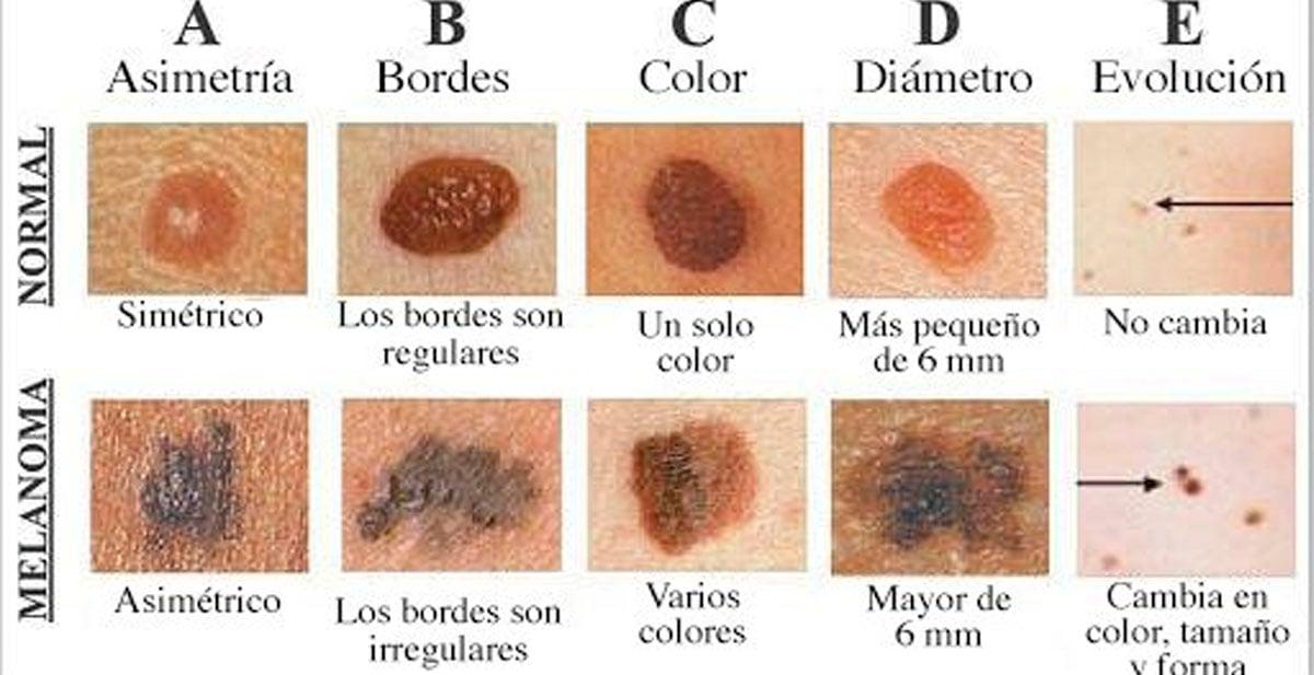 lunar-cancer-melanoma